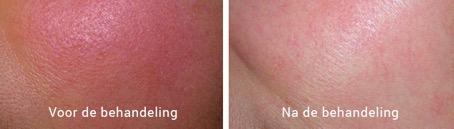 Coupersore, voor en na de behandeling